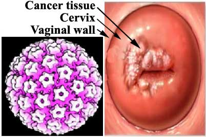 Human Papilloma Virus - Cervical Cancer